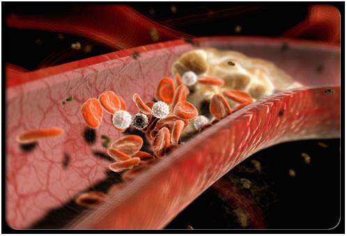 1. Điều trị các triệu chứng viêm đại tràng 1