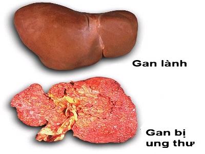 Ung thư gan - Phương pháp điều trị 1