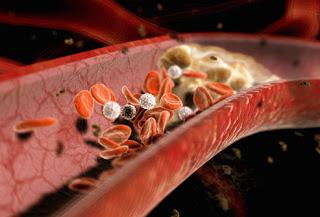 Bệnh động mạch vành 1