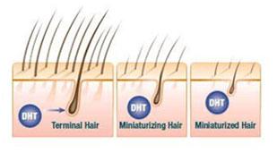 """DHT – """"Thủ phạm giấu mặt"""" của chứng rụng tóc"""