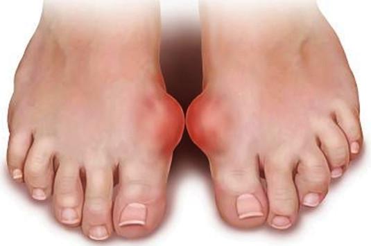 Giải đáp các câu hỏi thường gặp về bệnh Gout 1
