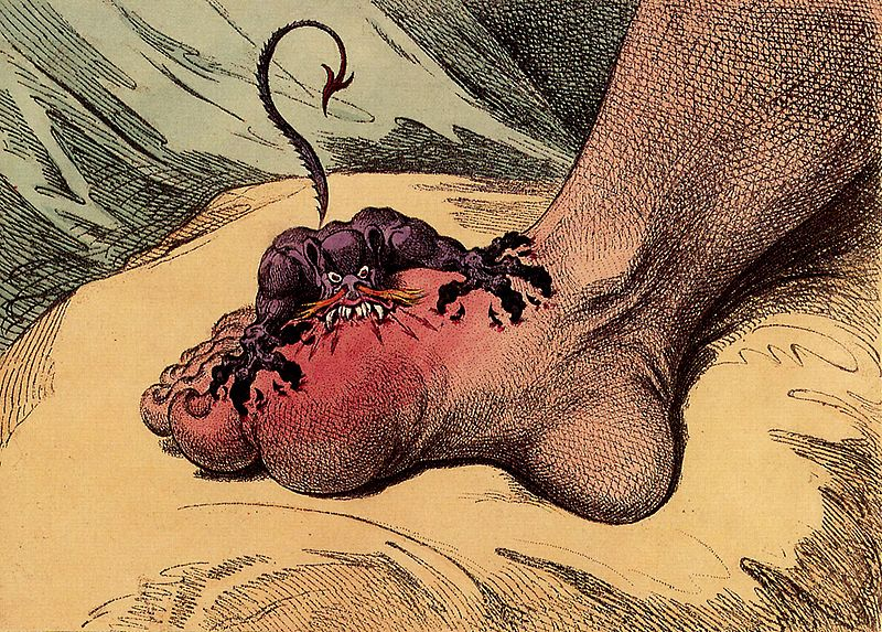 3.Bệnh Gout nguy hiểm gì? 1