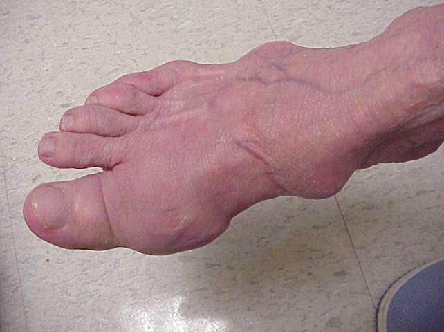 Hoàng Thống Phong được chứng minh có hiệu quả trong điều trị bệnh Gút 1