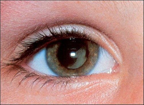 Những tổn thương gây ra do bệnh lupus ban đỏ  2