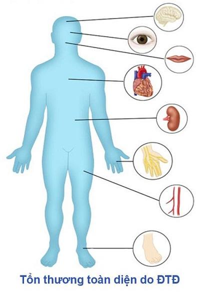 Hộ tạng đường: Phòng ngừa, hỗ trợ điều trị đái tháo đường 1