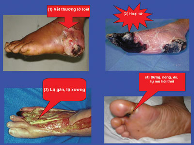 Biến chứng ở bàn chân do bệnh tiểu đường 1