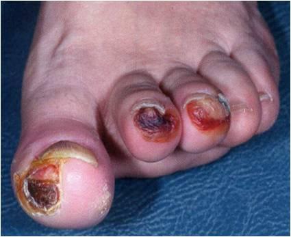 Loét bàn chân ở bệnh nhân tiểu đường: biến chứng không thể xem thường 1