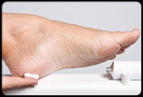 Phòng ngừa loét bàn chân do đái tháo đường 1