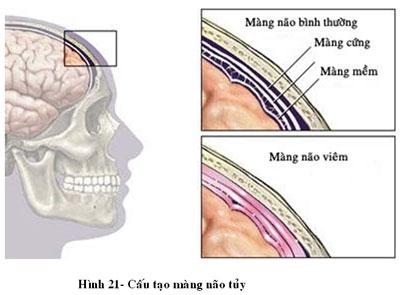 Viêm màng não do Hemophilus influenza B (Hib): 1