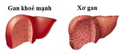 Tìm hiểu bệnh Xơ gan 1