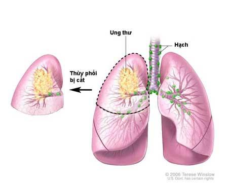 Ung thư phổi - Nguyên nhân và triệu chứng bạn nên biết! 1