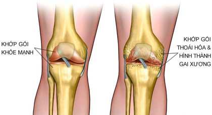 Viêm xương khớp và những điều cần biết 1