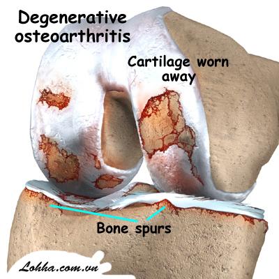 1. Khớp xương bị thoái hóa