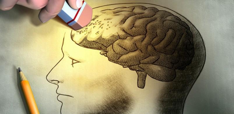 Cách phòng bệnh Alzheimer hiệu quả 1