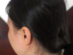 Trị rụng tóc sau sinh sao cho hiệu quả nhất