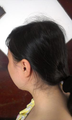 Trị rụng tóc sau sinh sao cho hiệu quả nhất 1