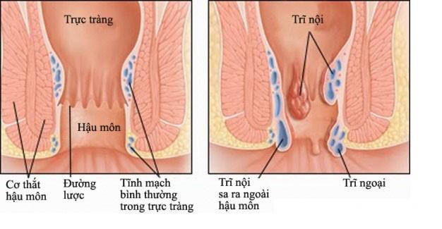 Bệnh trĩ ngoại 1
